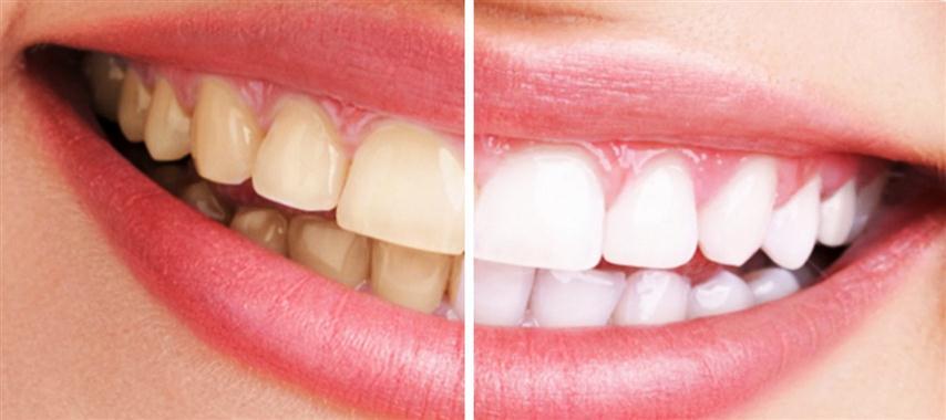 Dental whitening - Dentists in Barcelona stomatologist