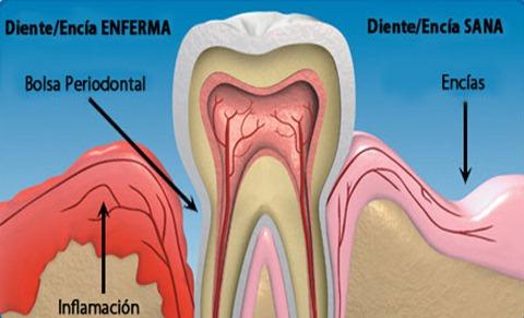 Periodontitis detection analysis - Dentists in Barcelona stomatologist